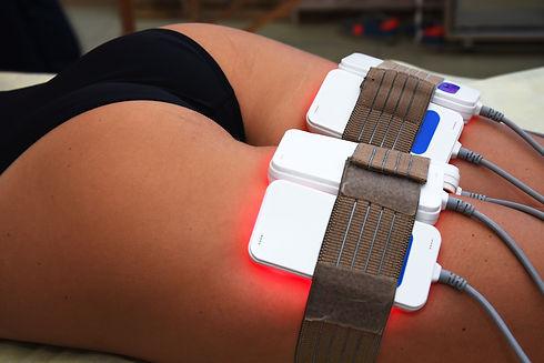 lipo laser. Hardware cosmetology. Body c