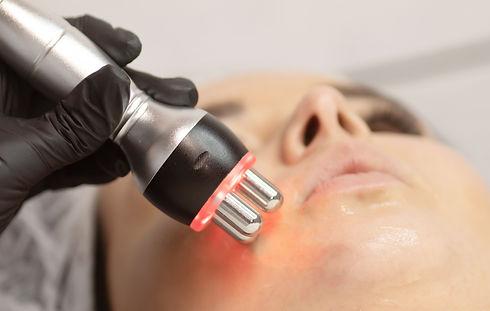 Radio frequency skin tightening, face..j
