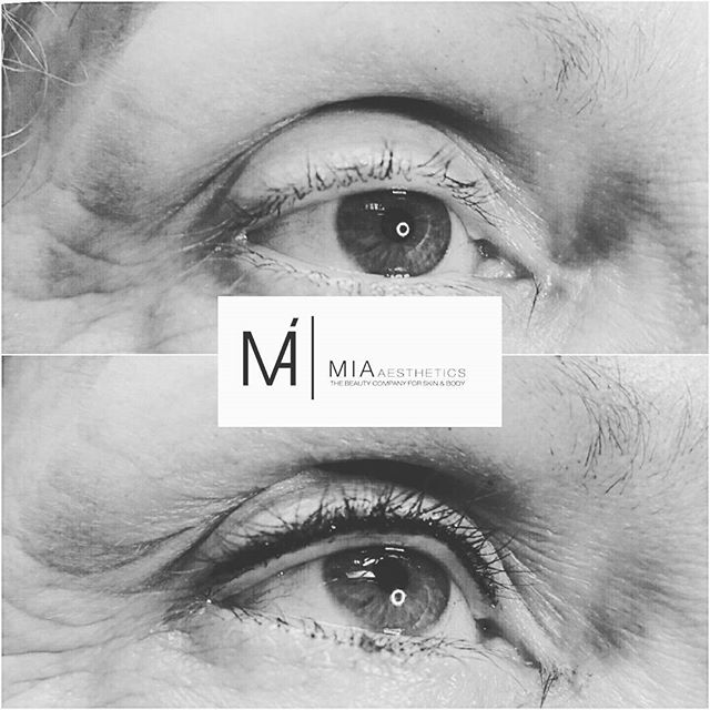 _ WE LOVE BEAUTY IN PERFECTION_  Wimpernkranzverdichtung _MIA Aesthetics _ Ihr Experte für professio