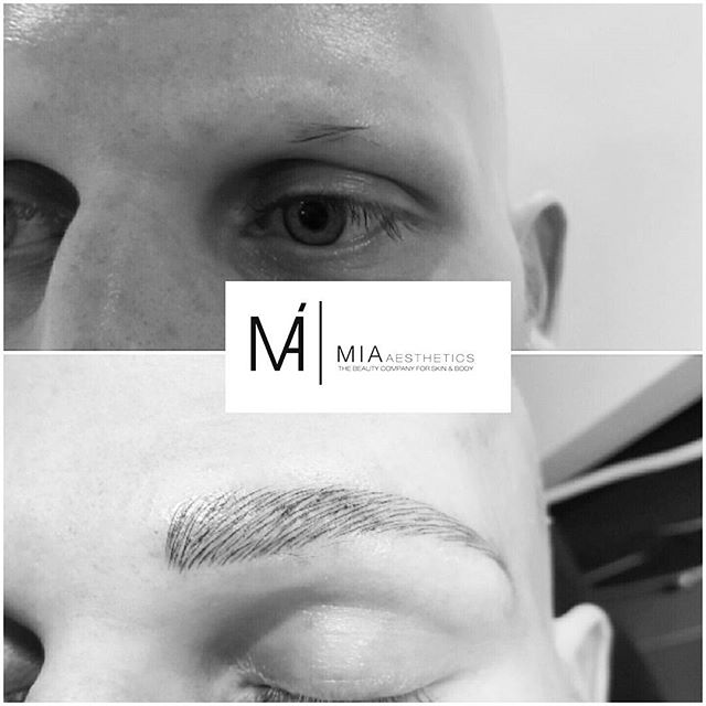 Micropigmentation for Men_MIA#Black Diamond Blading®Methode_3D _ Natürlich feinste Härchenzeichnung_