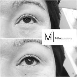 _ WE LOVE BEAUTY  IN PERFECTION_ _MIA#PermanentMakeUp _Eyeliner & Wimpernkranzverdichtung _MIA Aesth