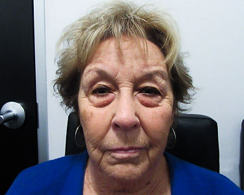 Before cosmetic eyelid surgery