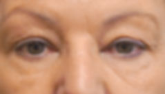 Consmetic Eyelid Surgery Pre-Op