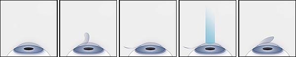 Lasik steps, lasik flap, laser eye surgery