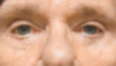 Consmetic Eyelid Surgery Post-Op