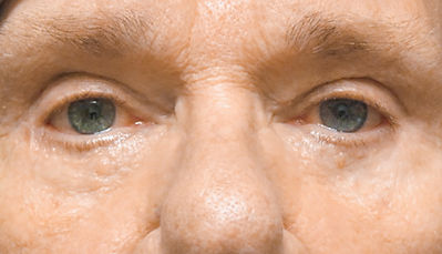 Consmetic Eyelid Surgery Post-Op