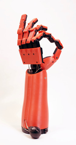 Phantom Pain Prosthetic Hand