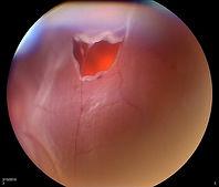 retina tear - photo by retina image bank