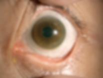 scleral-lens.png