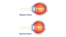 myopic eye vs normal eye.png