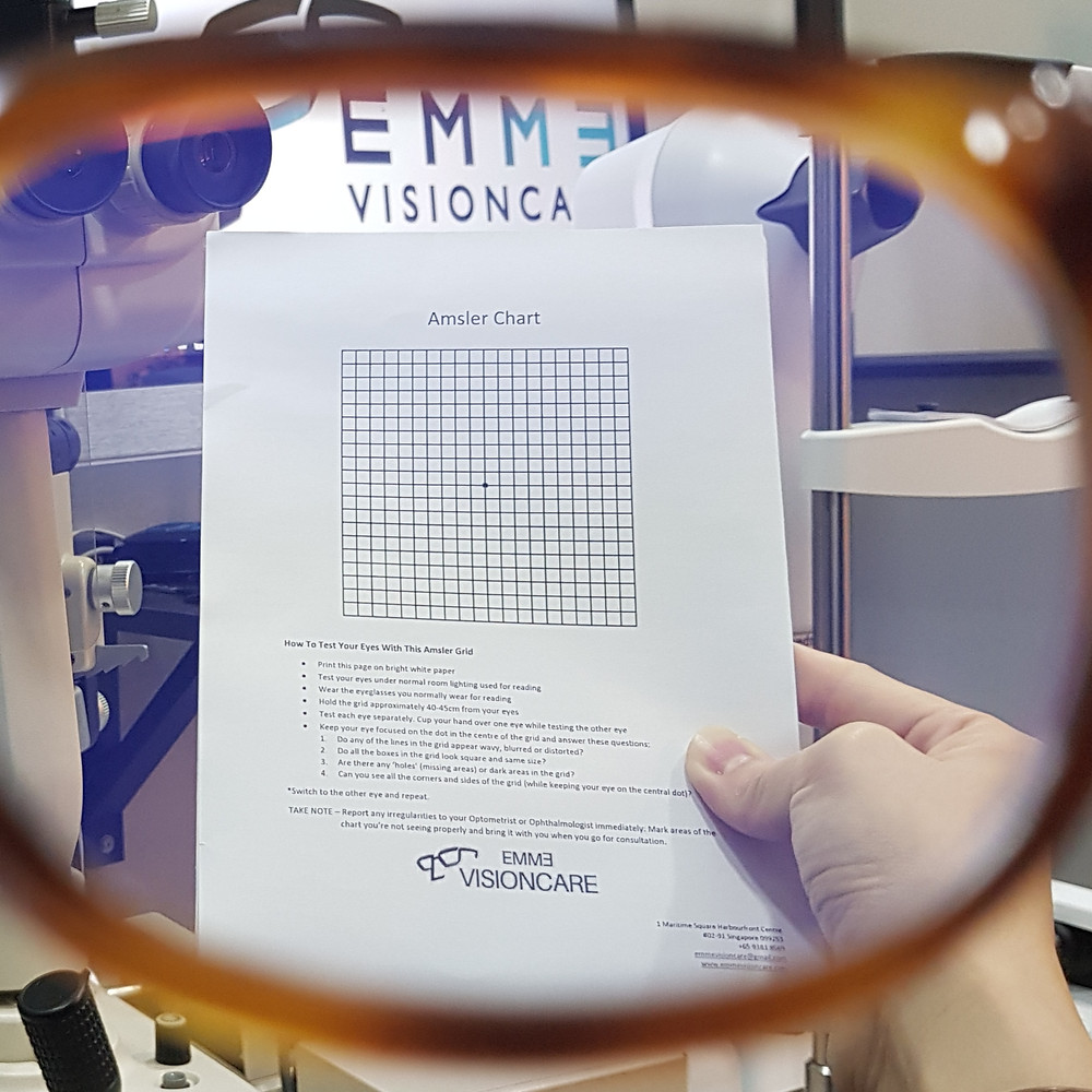 Monitor Age Related Macular Degeneration On Your Own