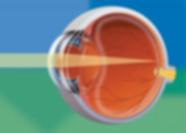 eyeball refractive error.jpg