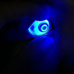 orthokeratology-lens-in-eye.jpg