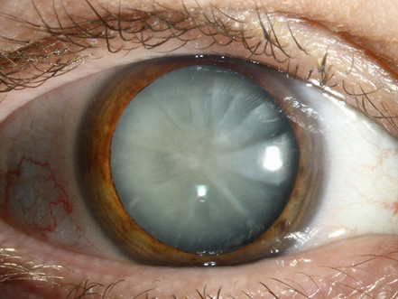Information on Cataracts