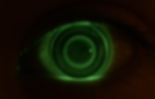 orthokeratology lens in the eye.png