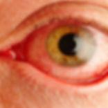 dry-eye.jpg