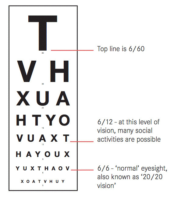 Visual Acuity Eye Chart