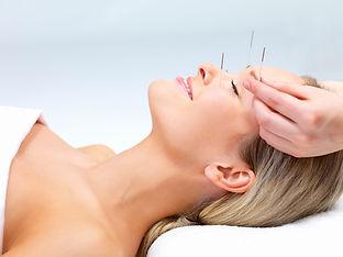 Woman getting acupunctrefor fertility