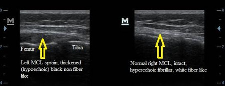 MCL Medial Collateral Ligament Sprain