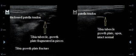 Tibia Tubercle Fracture