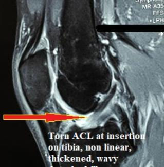 ACL_Tear_Prior_to_Stem_Cell_Injection_New_Jersey_Sports_Medicine.jpg