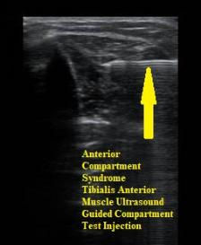 Chronic_Exertional_Compartment_Syndrome_Test_Anterior_Ultrasound_Guided_Test_Injection_Mar