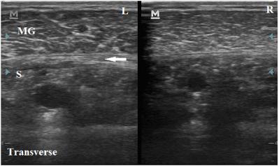 Gastrocnemius_Crural_Fascia_Thickening_MSK_Ultrasound_Transverse_View.png
