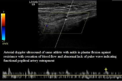 Arterial_Doppler__Ultrasound_Popliteal_Artery_Entrapment_NJ_Sports_Medicine.jpg