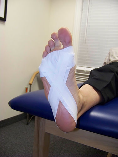 plantar_fasciitis_tape4_new_jersey_sports_medicine.jpg