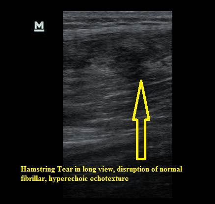 Ultrasound_Hamstring_Tear_long_view_NJ_Sports_Medicine.JPG