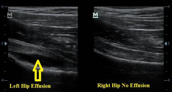 Ultrasound_Hip_Effusion_New_Jersey_Sports_Medicine_and_Performance_Center.jpg