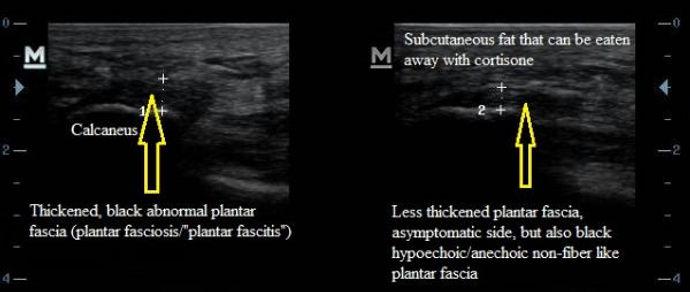 Ultrasound_Plantar_Fasciitis_Fasciosis_NJ_Sports_Medicine.jpg