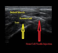 Stem_Cell_Ultrasound_Guided_Injection_Torn_Rotator_Cuff_Marc_Silberman_New_Jersey_Sports_M