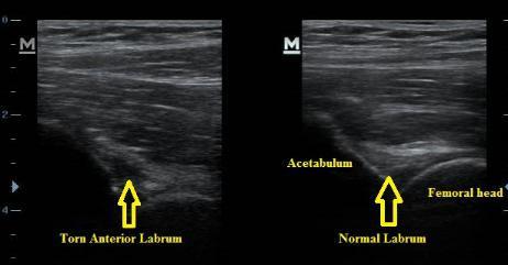 Ultrasound_Hip_Torn_Labrum_Anterior_Labral_Tear_NJ_Sports_Medicine.jpg