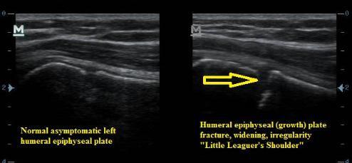 Ultrasound_Little_Leaguers_Shoulder_Fracture_Humerus_Physeal_Growth_Plate_NJ_Sports_Medici
