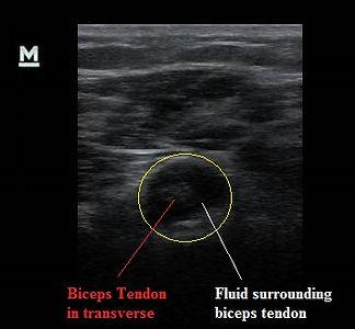 biceps_tenosynovitis_ultrasound_transverse_view_new_jersey_sports_medicine.jpg