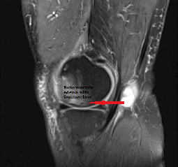 stem_cell_knee_arthritis_fracture_new_jersey_sports_medicine_side_dark.png