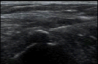 New_Jersey_Sports_Medicine_Calcific_Tendon_Needle_Lavage_Ultrasound_Guided.png