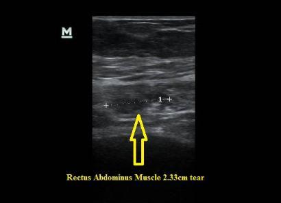 Ultrasound_torn_rectus_abdominus_muscle_NJ_Sports_Medicine.jpg