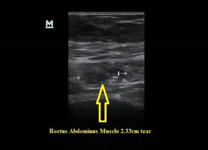 Abdominal Muscle Rectus Abdominus Tear