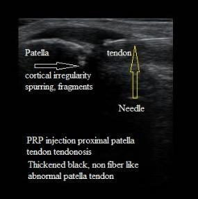 Ultrasound_PRP_Injection_Patella_Tendonosis_Tear_New_Jersey_Sports_Medicine.jpg