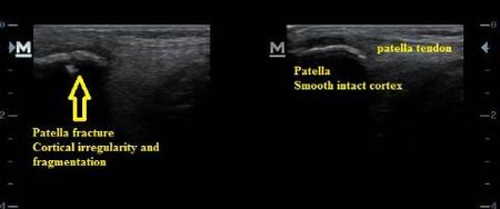 ultrasound_patella_fracture_distal_pole_nj_sports_medicine.jpg