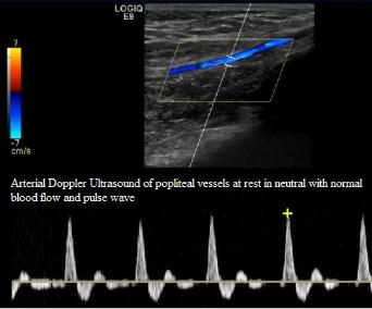 Arterial_Doppler_Ultrasound_of_Popliteal_Artery_Entrapment_PAES_Normal_at_rest_neutral_NJ_