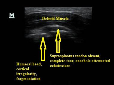 Ultrasound_Complete_Rotator_Cuff_Rupture_NJ_Sports_Medicine.jpg