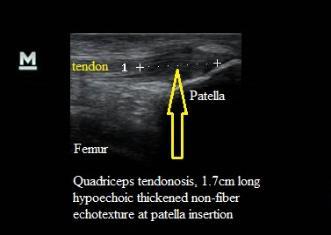 Quadriceps Tendonosis