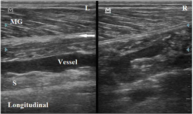 Gastrocnemius_Crural_Fascia_Thickening_MSK_Ultrasound_Long_View.png