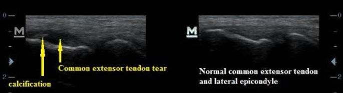 common_extensor_tendon_tear_and_calcific_tendonopathy_lateral_tennis_elbow_ultrasound_new_