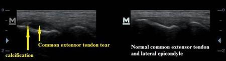 Tennis Elbow Extensor Tendon Tear