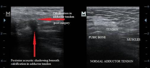sports_hernia_calcification_post_surgery_adductor_tendon_calcific_tendonitis_new_jersey_sp