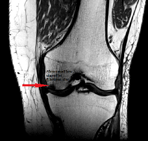 stem_cell_knee_arthritis_fracture_new_jersey_sports_medicine_front_T1.png